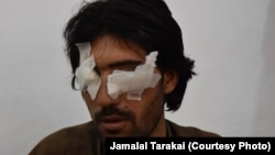 A photograph of Abdul Baqi taken after he was blinded by his father and brothers caused outrage in Pakistan after it was circulated on Facebook along with details of his horrific ordeal.