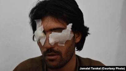 Pakistani Man Is Blinded By His Father Brothers For Wanting A Love Marriage