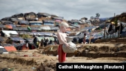 An albino Rohingya refugee poses for a picture in Cox's Bazar, Bangladesh. (Reuters/Cathal McNaughton)