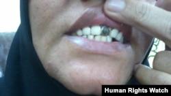 إمرأة محكوم عليها بالاعدام تشير الى التهاب في الاسنان واللثة