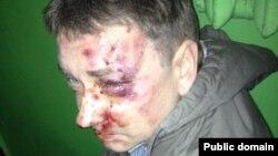 Євген Положій після побиття, фото 15 квітня 2014 року