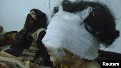 Nawi Pilleý halkara jemgyýetçiligini Siriýanyň graždan ilatyna garşy hüjümleri togatmak üçin tagalla etmäge çagyrdy.