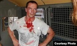 Ильдар Дадин, избитый и задержанный после одной из акций протеста