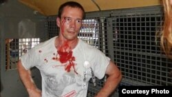 Ildar Dadin is photographed after being detained by Moscow police during protests in August 2014.