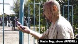 Диссидент Арон Атабек Шаңырақ оқиғасы кезінде жарақат алды. 14 шілде 2006 жыл.