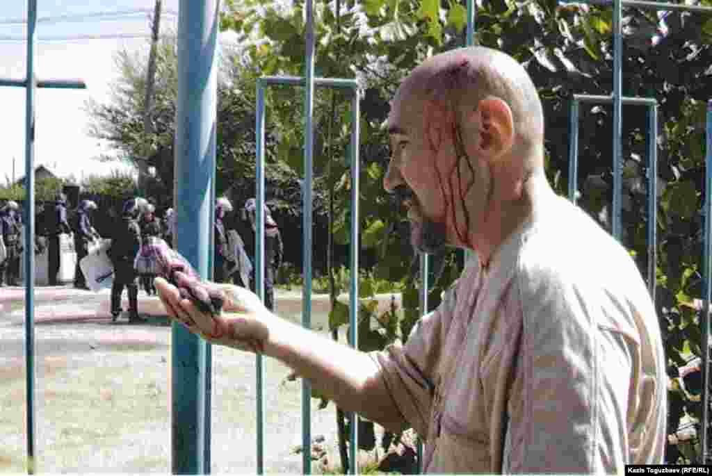Поэт Арон Атабек, раненный во время Шаныракских событий. Позже его приговорят к 18 годам тюрьмы по обвинению в организации беспорядков и причастности к убийству полицейского Асета Бейсенова в микрорайоне Шанырак.