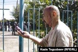 Арон Атабек, раненный во время столкновений в поселке Шанырак. 14 июля 2006 года.