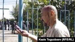Диссидент Арон Атабек, раненный во время столкновений в поселке Шанырак. 14 июля 2006 года.