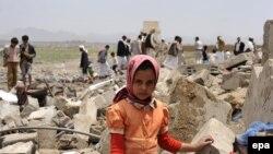 طبق آمار یونیسف، ۹ میلیون و ۳۰۰ هزار کودک یمنی در شرایط نامطلوبی قرار دارند که باید به آنها یاری رساند.