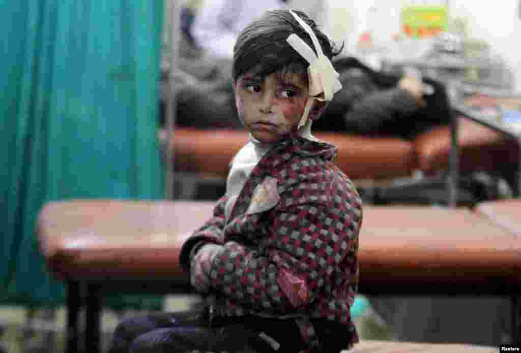 An injured boy waits inside a field hospital after what activists said were air strikes and shelling by government forces in the Douma neighborhood of Damascus, Syria. (Reuters/Mohammed Badra)