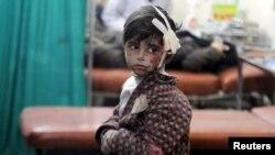 Раненый мальчик в полевом госпитале в окрестностях Дамаска, 22 апреля 2015 года
