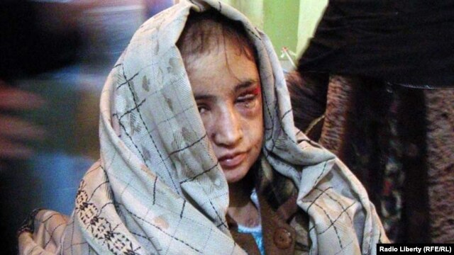 Sahar Gul, pictured shortly after her rescue, says she was lashed with cables and beaten with hot irons.