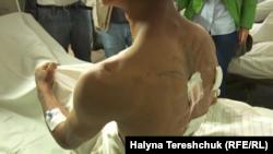 Один із поранених внаслідок нападу на табір ромів у Львові