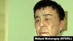 Нуржан Уркешбаев после пластической операции. Алматы, 27 декабря 2011 года.