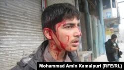 Afganistanski dječak ranjen u samoubilačkom napadu u provinciji Nangarhar u blizini grada Jalalabad, 19. siječanj 2011.