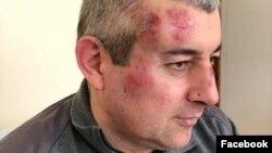 Сиражутдин Дациев после избиения