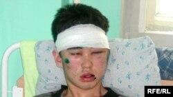 Независимый журналист Бахытжан Нурпеисов на больничной койке после нападения на него. Алматы, 6 февраля 2009 года.
