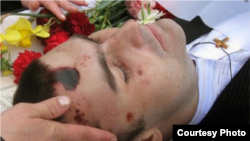 Valeriu Boboc was allegedly beaten to death by police during the riots last year in Chisinau.