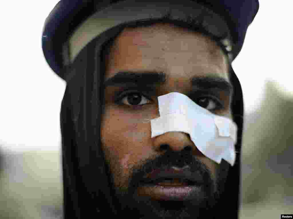 Тәхрир мәйданындагы бәрелешләрдә яраланган демонстрацияче. 9 февраль 2011.