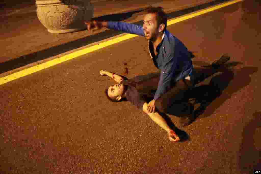 An injured man lies on the ground during a protest against the attempted coup.