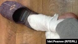У Ивана обморожение ног первой и второй степени