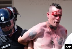 Поранений вболівальник збірної Англії у супроводі поліції у Марселі. 11 червня 2016 року
