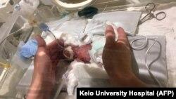Раніше повідомлялося, що в Токіо через шість місяців виписали хлопчика, який народився з вагою 268 грамів