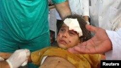 Палестинская девочка, раненая при обстреле Рафаха, 2 августа 2014