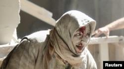 Povrijeđena žena u vazdušnim napadima na Alep, 28. apil 2016.
