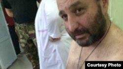 Братья Пухаевы нанесли себе раны в области брюшной полости в изоляторе временного содержания. На крайнюю меру заключенные пошли после того, как к ним не пустили российских адвокатов, ссылаясь на то, что материалы дела содержат гостайну