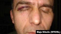 Aleksandar Ninković nakon zlostavljanja u policiji