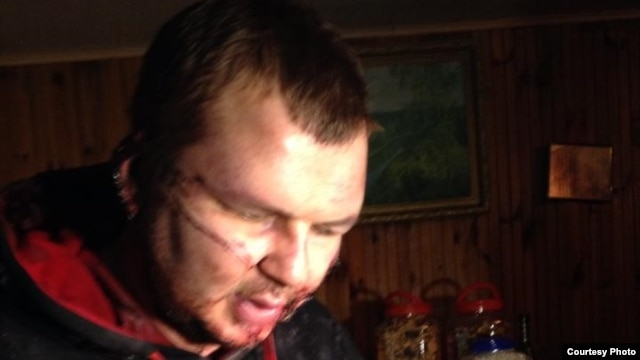 Missing activist Dmytro Bulatov turned up in a village near Kyiv on January 30, saying he had been abducted and tortured.