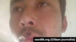 Сотрудники милиции избили фермера Мухиддина Абдувохидова за сбор листьев тутовника. Фото сделано 15 мая.