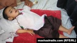 طفل مصاب بالكوليرا