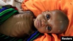 Somalidən olan qaçqın uşaq, Keniya, 28 iyul 2011.