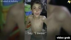 کودکان در شهر سوری مضایا با گرسنگی دست و پنجه نرم میکنند.