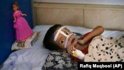 آرشیف، کودک افغان مصاب به سوءتغذیه