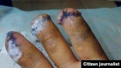 29-летнему Азизу Муминову из Бухары отрезало пальцы на рабочем месте.