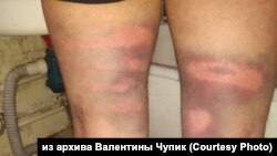 Травмы задержанных в Хабаровске