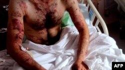 مردی که پس از گریز از سرکوبهای تظاهرات در سوریه در بیمارستانی در استان مرزی ختای ترکیه بهسر میبرد. ۸ ژوئن ۲۰۱۱.
