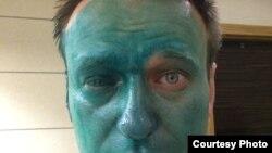 Алексей Навальныйдын бетине 27-апрелде зеленка чачып кетишкен.