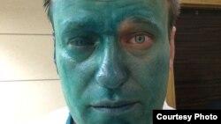Алексей Навальный после нападения.