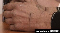 Рукі Васіля Сарочыка, які заявіў пра катаваньні ў пастарунку, архіўнае фота