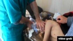 Врачи оказывают помощь сирийскому ребенку, пострадавшему при химической атаке.