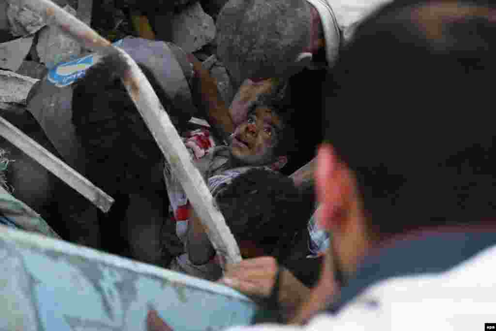"""Фотограф Самир Аль-Доуми занял первое место в категории """"Фотография с места события"""". Сирия, эвакуация раненого мальчика из Дамаска, июль 2015 года."""