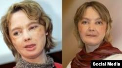 Француженка Изабель Динуар, первая женщина с пересаженным лицом