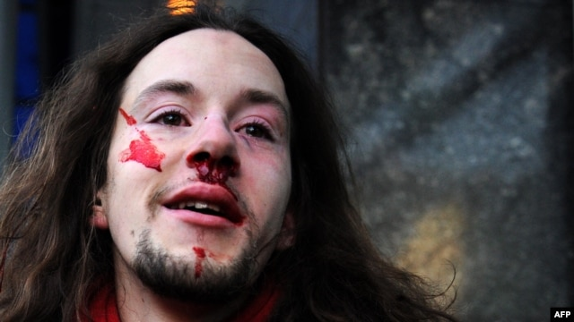 A gay rights activist stands in front of the State Duma after being punched during a protest in Moscow on January 22.