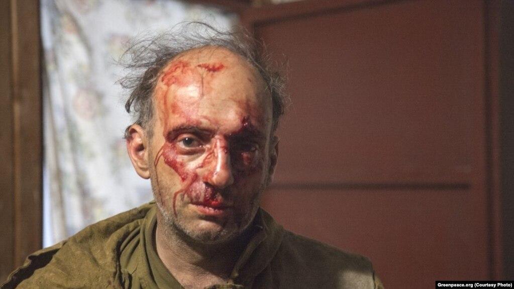 Михаил Крейндлин после нападения в сентябре 2016 года 4ed04a1f3e9