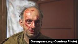Михаил Крейндлин после нападения на экологов