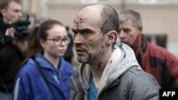 Пострадавший при взрыве в метро